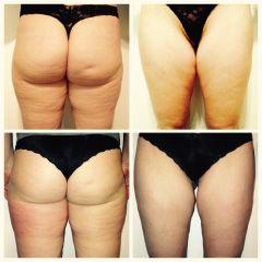 Endermologi-before-after-women-1