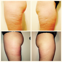 Endermologie-before-after-women