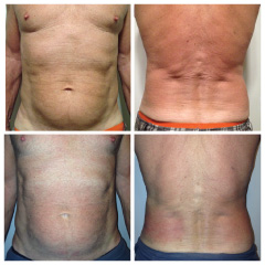 Endermologie-before-after-men